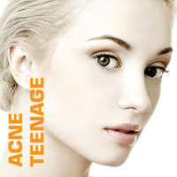 Acne-Teenage